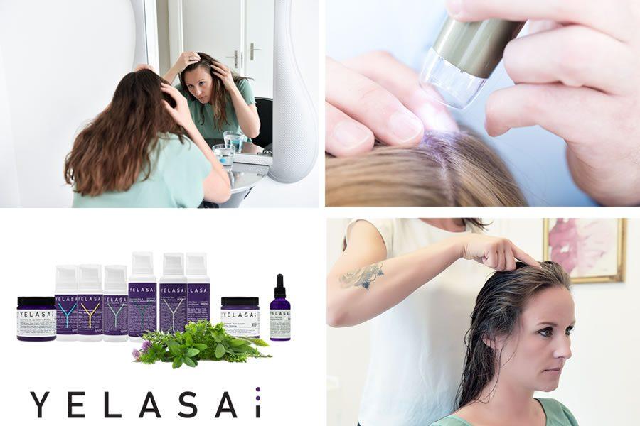 Fachwissen reloaded - Die 5 häufigsten Formen des Haarausfalls