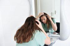1 | Fachwissen reloaded - Die 5 häufigsten Formen des Haarausfalls