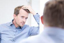 2 | Fachwissen reloaded - Die 5 häufigsten Formen des Haarausfalls